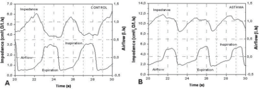 Typical airflow and respiratory impedance analyzed in the control group (A) and asthmatic (B) individuals. Notice the difference in the impedance scales.