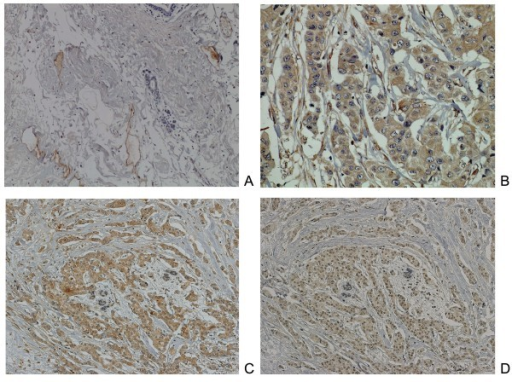 Neuropilin-2 (Nrp2) expression in normal breast and breast carcinoma tissue. (A) Nrp2 staining was observed in blood or lymph vessels. There was no staining in normal breast epithelium. (×100). (B) In cancer tissue, staining of the Nrp2 protein was identified not only in the vascular endothelial cells, but also in the cytoplasm of cancer cells. Almost all invasive cells were immunopositive for Nrp2. (×200). (C-D) Co-localized expression of Nrp2 (C) and CXCR4 (D) using serial sections of breast carcinoma tissue. (×100).