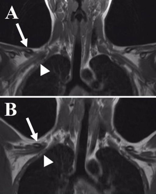 Case 1: (A-B) MRI T1-weighted coronal images showing th   Open-i
