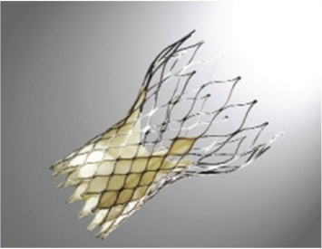The CoreValve self-expandable prosthetic valve, constructed of a nitinol stent, pericardial leaflets, and sealing cuff.