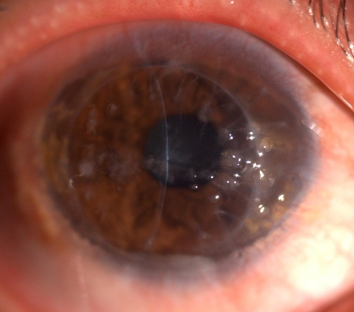 Slitlamp photographs of the right cornea of the proband four year after penetrating keratoplasty. Elevated, mulberry-like gelatinous lesions companied with yellowish globular droplets are showed.