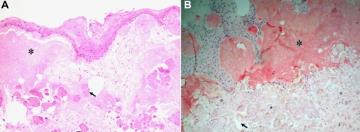Histopathological findings of the corneal button taken from the right eye. A: Hematoxylin and eosin staining shows amorphous deposits in the subepithelial region (asterisk). The overlying epithelium is degenerated, and Bowman's layer is completely replaced by deposits. Underneath these amorphous deposits, there are globular deposits of various sizes with irregular peripheral margins that stained weakly with eosin (arrow). B: Amyloidal deposition is confirmed in the subepithelium with Congo red staining (asterisk). While the globular deposits of various sizes located primarily in the anterior stroma stained negatively with Congo red (arrow) (original magnification 100×).
