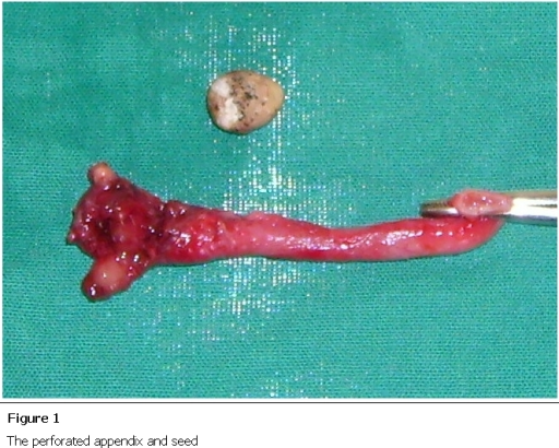 Figure 1:Foreign body causing perforation of the appendix ...