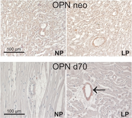 Examples of myocardial stainings for osteopontin.Representative photomicrographs of immunostainings for osteopontin (OPN) in myocardial tissue of neonatal control rats and neonatal rats with intrauterine growth restriction (neo); and in myocardial tissue of control rats and rats with intrauterine growth restriction at day 70 of life (d70). NP, control rats; LP, rats with intrauterine growth restriction. Arrow indicates positive immunoreactivity for OPN in the media of myocardial vessels in LP at day 70.