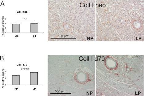 Myocardial deposition of collagen I.Evaluation of the percentage of positive immunostaining for collagen I (coll I) in myocardial tissue of (A) neonatal control rats and neonatal rats with intrauterine growth restriction (neo) with representative photomicrographs; and in myocardial tissue of (B) control rats and rats with intrauterine growth restriction at day 70 of life (d70) with representative photomicrographs. NP, control rats; LP, rats with intrauterine growth restriction. Data are means ± sem.