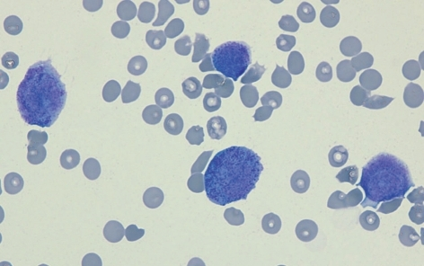 Cytospin preparation of the cerebrospinal fluid of Case 1 showing promyelocytes with Auer rods in the cytoplasm. Numerous red blood cells are seen in the background (Wright-Giemsa stain, ×1,000).