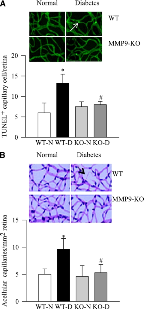 Abrogation of MMP-9 gene protects retinal microvasculature from accelerated apoptosis and the development of diabetic retinopathy. Trypsin-digested retinal microvasculature was prepared from MMP-KO and WT mice that were diabetic for ∼7 months. A: Capillary cell apoptosis was detected by TUNEL staining of the microvasculature, and the arrow indicates TUNEL-positive capillary cell. B: After TUNEL staining, the microvessels were stained with periodic acid Schiff–hematoxylin and examined by light microscopy for the basement membrane tubes lacking cell nuclei and maintaining at least one-fourth the normal capillary caliber over their length. The arrow indicates acellular capillary. Results are expressed as mean ± SD using five to six mice in each group. *P < 0.05, compared with WT-N; #P < 0.05, compared with WT-D. (A high-quality digital representation of this figure is available in the online issue.)