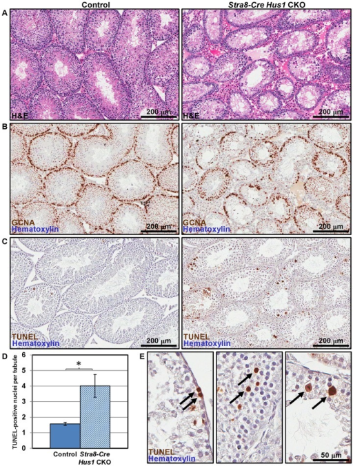Hus1 loss results in germ cell depletion.A. 100× images of H&E-stained histological sections from 12-week old control (left; Cre+ Hus1+/flox) and Stra8-Cre Hus1 CKO (right) testes. B. GCNA1 staining of germ cells in control and Stra8-Cre Hus1 CKO testes indicating germ cell loss. C. TUNEL staining of control and Stra8-Cre Hus1 CKO adult testes indicating germ cell apoptosis. D. Quantification of TUNEL staining shown in C, shown as the mean ± SEM. Asterisk indicates statistically significant difference between Hus1 CKO and control animals (p<0.05, Student's t-test). E. Higher magnification (400×) images of TUNEL staining in Stra8-Cre Hus1 CKO adult testes. Arrows highlight TUNEL-positive cells that appeared to be pre-meiotic (left), mid-prophase I (middle), or at meiotic metaphase (right).
