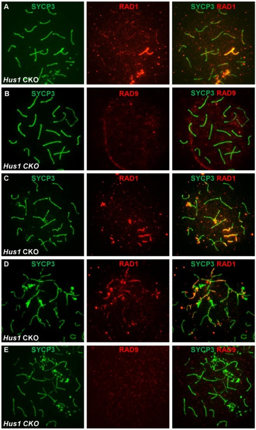 RAD1 and RAD9 localization to meiotic chromosomes is differentially affected by Hus1 loss.Meiotic chromosome spreads from Stra8-Cre Hus1 CKO mice were stained for SYCP3 and RAD1 (A, C, D) or RAD9 (B, E). A,C,D. RAD1 continued to localize to sex chromosomes and aberrant meiotic chromosomes in the absence of Hus1. Most notably, RAD1 localization to asynapsed autosomes and chromosomes with the sex body domain persisted in cells from Hus1 CKO mice. By contrast, RAD9 localization to both normal and aberrant chromosome structures was abolished following Hus1 loss (B,E).
