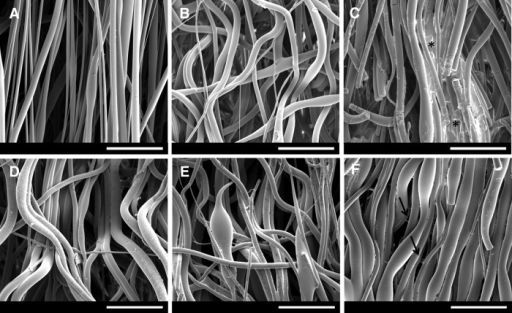 SEM micrographs of electrospun PLGA scaffolds and treated groups: (A) PLGA, (B) PLGA PBS, (C) PLGAH01, (D) PLGAH001, (E) PLGAH01FN, and (F) PLGAH001FN. Scale bar, 50 μm. Asterisk (*) corresponds to hydrolyzed collapsed fibers; black arrows correspond to deposited structures between PLGA fibers. FN, fibronectin; PBS, phosphate buffered saline; PLGA, poly(d,l-lactide-co-glycolide); SEM, scanning electron microscopy.