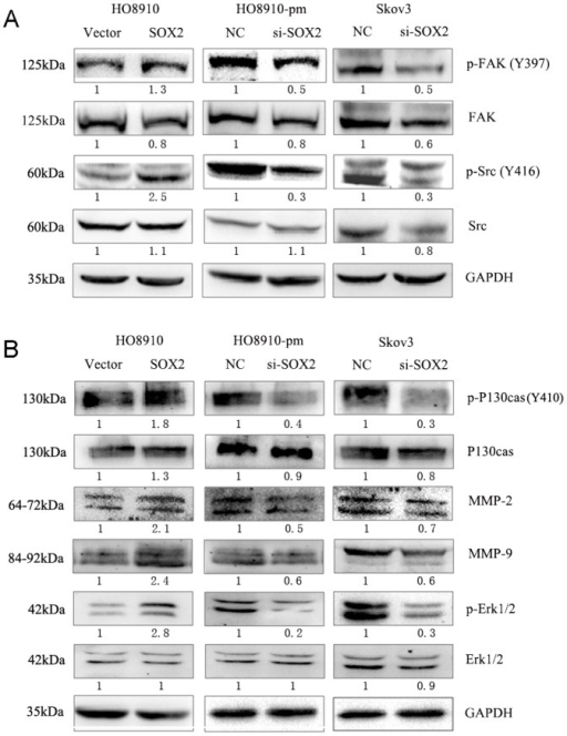 SOX2 regulate phosphorylation level of multiple pro-matastatic proteins.(A)Left, western blot analysis proteins expression after stable transfection of SOX2 plasmid in ho8910. Middle, western blot analysis proteins expression after transient transfection of SOX2 siRNA in HO8910-pm. Right, western blot analysis proteins expression after transient transfection of SOX2 siRNA in Skov3. (B) The arragement of B is similar to A.