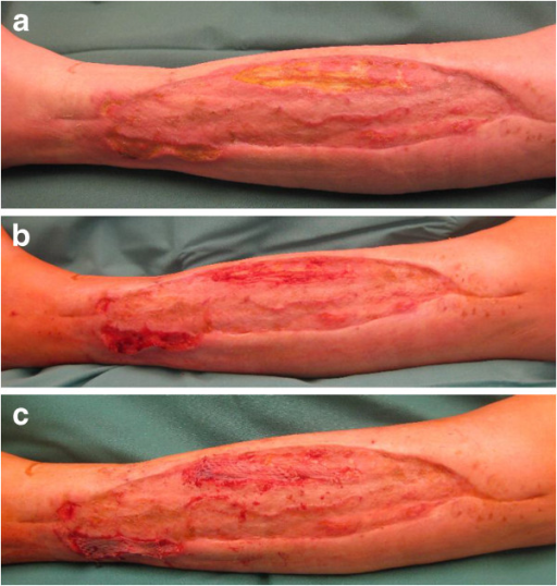 Second split-thickness skin graft. a. Delayed wound healing after3.5 months. b. Intraoperative wound after debridement after3.5 months. c. Second split-thickness skin graft after3.5 months.