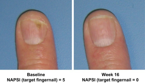 Nail psoriasis improvement in one patient. Images from a white, 63-year-old male patient, illustrate improvement in the patient's nail psoriasis (left hand, digit 4) from baseline to week 16 following adalimumab treatment. This patient was previously treated with corticosteroids and infliximab, but did not achieve response with infliximab. Nail Psoriasis Severity Index target fingernail scores range from 0 to 8.
