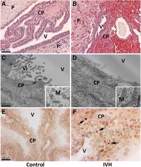 Analysis of structural damage and cell death in the choroid plexus. Rabbit pups with IVH + PHVD (B, D, F) or sham controls (A, C, E) were euthanized at 72 hours of age and the brains were removed from the skulls, sectioned at the level of the midseptal nucleus and placed in formaldehyde for subsequent histochemical analysis with H&E (A and B) and IHC analysis against cleaved caspase-3 (E and F) as described in Materials and Methods. For EM-IHC (C and D), the choroid plexus from pups with IVH + PHVD and sham controls at 72 hours was fixed and prepared as described in the Materials and Methods and observed in a Jeol JEM 1230 electron microscope. Recessed picture display mitochondrial structure. P = periventricular tissue, CP = choroid plexus, V = ventricle, Vi = villi, M = mitochondria. Arrow illustrates cleaved caspase-3 positive staining. Scale bar in (A) indicate 50 μm (is applicable for panels (A) and (B)), in (C) indicate 500 nm (is applicable for (C) and (D)) and (E) indicate 20 μm (is applicable for (E) and (F)). IHC, immunohistochemistry; IVH, intraventricular hemorrhage; PHVD, post-hemorrhagic ventricular dilatation.