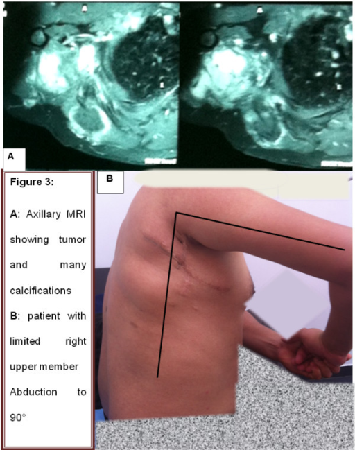Last magnetic resonance imaging and patient status. Axillary magnetic resonance imaging (A) showing tumor and many intratumoral calcifications. (B) Patient with limited right upper member abduction to 90°.