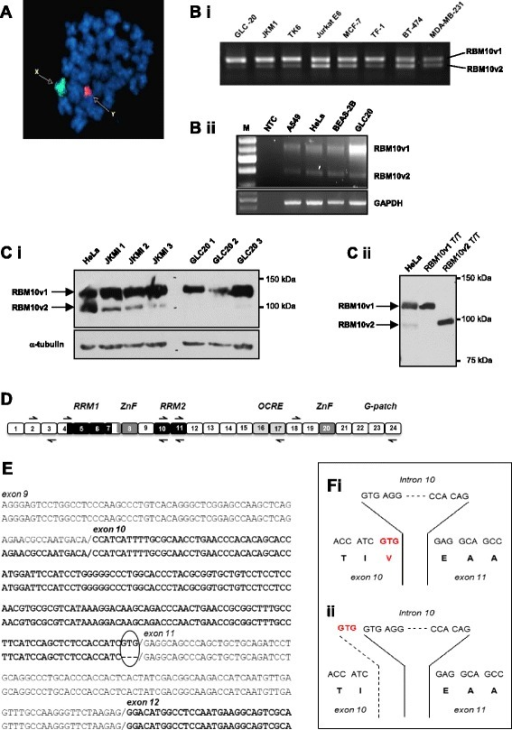 Alternative splicing of RBM10. (A) FISH analysis of GLC20 cells, with painted X and Y chromosomes, demonstrating the presence of only one X chromosome. (B) RBM10v1 and RBM10v2 RNA expression in various cell lines, including GLC20. Representative raw RT-PCR data using RBM10 exon 4 spanning primers. Bi: RBM10F with RBM10RS primers. Bii: RBM10F with RBM10v1/v2R primers. M: 100 bp DNA ladder (FroggaBio Inc., Toronto, Canada). NTC: no template control. (C) Protein expression by Western blot. Ci shows RBM10 expression in whole cell lysates from three cell lines, including GLC20. The numbers 1, 2 and 3 after JKM1 and GLC20 delineate cells from three biological replicates. Cii includes control HeLa protein and in vitro translated RBM10v1 and RBM10v2 protein, to confirm the location of RBM10v2 is the cell line extracts. (D) Cartoon of full-length RBM10v1 mRNA, not drawn to scale. Boxes represent exons. Left and right black arrows represent primer placement for sequencing. Approximate positioning of consensus functional motifs is indicated by text and differential shading. (E) Alignment of the two GLC20 RBM10v1 isoform sequences. Circled area indicates the region that differs between the two RBM10v1 isoforms. (F) Nucleotide and amino acid sequences of the RBM10v1 exon10/intron 10/exon 11 donor and acceptor sites for (i) RBM10v1(V354), and (ii) RBM10v1(V354del).