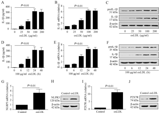 Oxidized low-density lipoprotein (oxLDL) promotes THP-1 macrophage production and the release of interleukin-1β (IL-1β) by activating the purinergic 2X7 receptor (P2X7R)/nucleotide-binding oligomerization domain-like receptor protein 3 (NLRP3) pathway. (A) IL-1β concentration in medium after THP-1 cells were stimulated with different concentrations of oxLDL. (B) IL-1β mRNA expression after THP-1 cells were stimulated with different concentrations of oxLDL. (C) IL-1β expression after THP-1 cells were stimulated with different concentrations of oxLDL. (D) IL-1β concentration in medium at different time points after THP-1 cells were stimulated with 100 μg/ml oxLDL. (E) IL-1β mRNA expression at different time points after THP-1 cells were stimulated with 100 μg/ml oxLDL. (F) IL-1β expression at different time points after THP-1 cells were stimulated with 100 μg/ml oxLDL. (G and H) Effect of oxLDL on NLRP3 expression in THP-1 macrophages. (I and J) Effect of oxLDL on P2X7R expression in THP-1 macrophages.