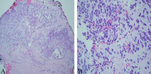 (A – 100×, B – 400×): Histopathology of multiple punch biopsy of mass revealing monomorphic round tumor cells with minimal cytoplasm in loose myxoid background, consistent with extraskeletal myxoid chondrosarcoma.
