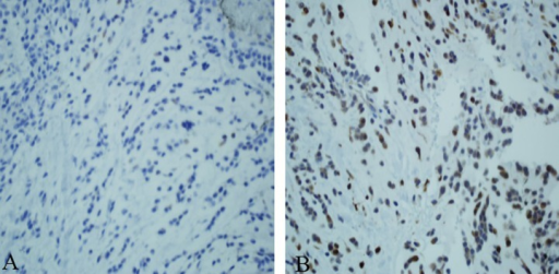 (A) Immunohistochemical staining was positive for synaptophysin. (B) Weakly positive for S 100.