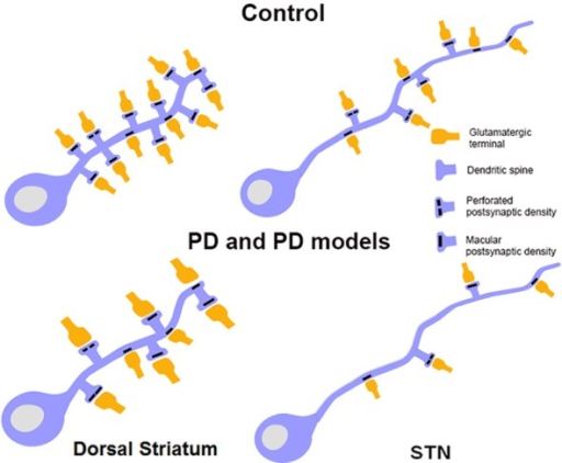 Schematic showing morphological changes in dendritic spines and glutamatergic afferents in striatal MSNs and projection neurons in the STN in MPTP-treated parkinsonian monkeys. In the striatum of parkinsonian monkeys, there is a significant reduction in the density of Sp on MSNs, but the remaining spines and terminals display an increase in volume. The size of the PSD at corticostriatal and thalamostriatal synapses is also increased and more commonly perforated in parkinsonian animals than controls. In the STN, there is an overall decrease in the prevalence of vGluT1-positive cortical terminals in contact with dendrites and spines of STN neurons in parkinsonian animals. Potential changes in the ultrastructure of spines and afferent glutamatergic terminals, as shown in the striatum, remain to be determined in the STN.