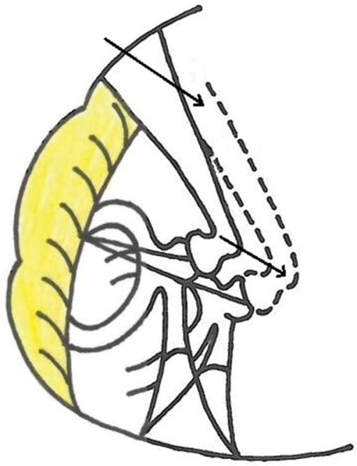 Illustration showing the increase in length from facial nerve to stapes head due to obliquity of stapes in otosclerosis (dotted line).