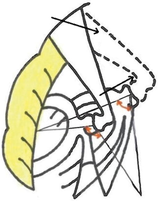 Illustration showing change in angle due to obliquity of stapes in otosclerosis (dotted line).
