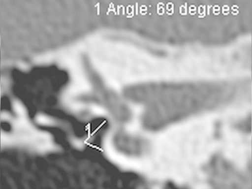 HRCT Temporal bone coronal image showing angle measured in otosclerotic patient.