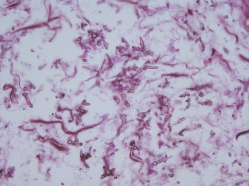 Photomicrograph (original magnification 400; methenamine silver staining) revealed fungal hyphae in a background of necrosis. Individual hyphae with dichotomous 45 degree branching and septation is characteristic of Aspergillus sp.