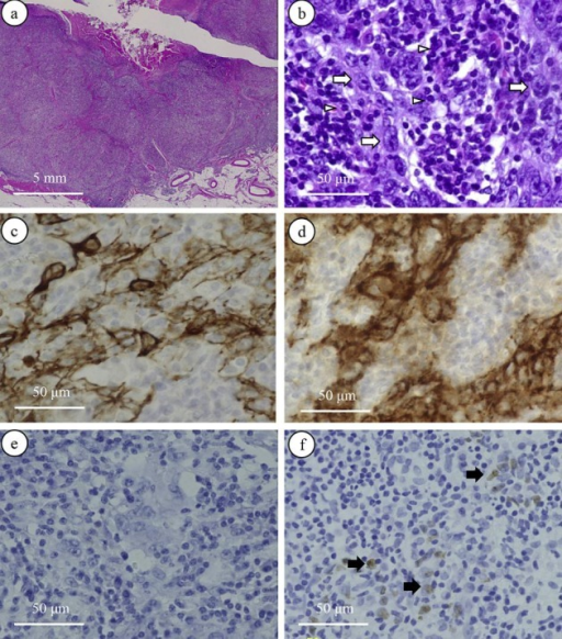 a–d LELCB in this case. a Microscopic findings at low magnification showed that the tumors had invaded the perivesical soft tissue. H&E stain. b Microscopic findings at high magnification showed that tumor cells (arrows) were surrounded by infiltrating lymphocytes (arrowheads). H&E stain. c Immunohistochemical staining for cytokeratin (AE1/AE3). d Immunohistochemical staining for E-cadherin. e EBER-ISH for this case. Tumor cells were negative. f Lymphoepithelioma of the pharynx in another patient. EBER-ISH of tissues. Tumor cells (arrows) were positive for EBER-ISH (positive control).