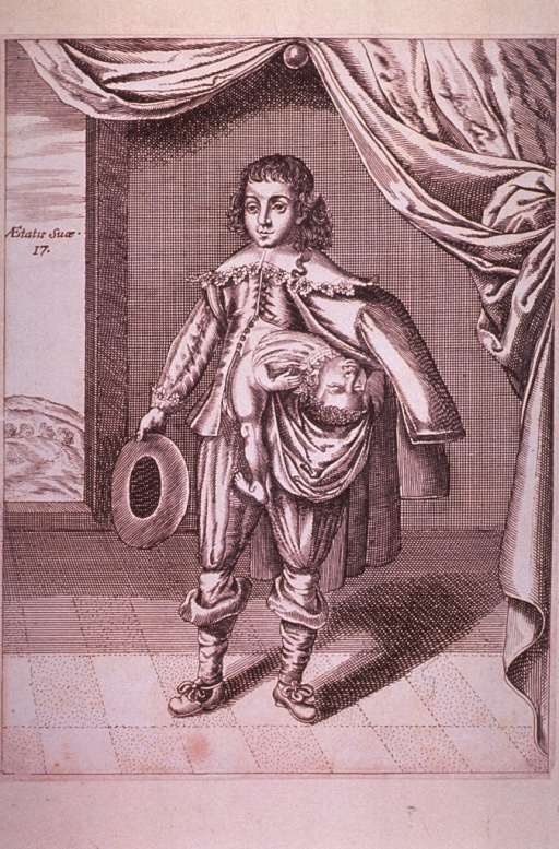<p>Shows a boy with a partial twin growing from his side.  Pencil notation on verso reads:  Jas. Poro. nat. 1686.</p>