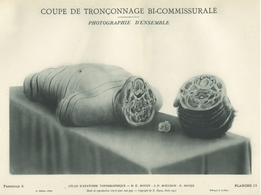 <p>Image of trunk of human body lying on a table, cut off at lower jaw, with head alongside. Issued in seven installments by the flamboyant Parisian surgeon Eugene-Louis Doyen (1859-1916), this atlas of 279 &quot;heliotyped&quot; photographic plates of cross-sectioned bodies was a radical departure from past practice. Atlas d'anatomie topographique, fasicule 5, planche 17.</p>