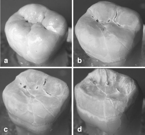 Effect of the continuous exposure of a human third molar to 10% citric acid. The amorphous, centripetal tissue loss is obvious (a unaffected tooth, b tissue loss after 4, c 8, and d 12 h immersion time)