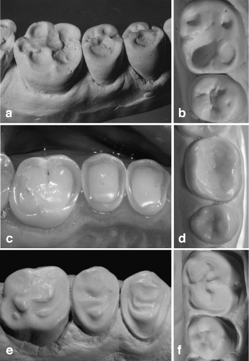 Occlusal tissue loss from erosive aetiology can also be of strikingly different shape either presenting as deeply hollowed out lesions (a subject with raw food diet [15], b subject with excessive consumption of orange juice) or as amorphous generalised tissue loss affecting the entire surface (c, d subjects with excessive consumption of erosive drinks). An interesting feature is seen in an adolescent with a history of severe anterior open bite with only the molars being in function e Substance loss occurred from excessive consumption of a cola type drink. In the premolars, dentine is proud of the surface. f Hollowing out the entire occlusal surface with enamel remnants in the centre, aetiology is the excessive consumption of sport drinks