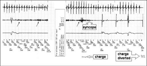 Recorded episode of diverted therapy. Atrial electrogram (top) ventricular electrogram (middle) and paced electrogram (bottom). Black arrows indicate non-physiological potentials