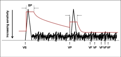 Automatic gain control (red line). See text for explanation. Blanking period (BP), ventricular sensed event (VS), ventricular paced event (VP), ventricular fibrillation detection (VF)