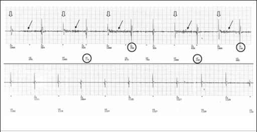 Ventricular electrograms from an implanted defibrillator interrogation. Noise (black arrows) is only detected after paced events (open arrows) resulting in events detected in the VF zone (circled, upper trace). Once base rate pacing is reduced, (lower trace), there are no paced events and as a result noise is not detected
