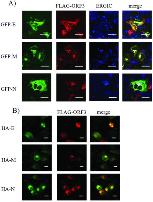Subcellular localization of overexpressed hCoV-NL63 proteins in Huh-7 and HEK-293T cells. Confocal laser scanning microscopy on cells co-expressing GFP-E, GFP-M, GFP-N, respectively, together with FLAG-ORF 3. (A), Huh-7 cells. The green panels on the left show GFP fluorescence from overexpressed E, M, and N proteins. Red pictures in the next column show Cy3 fluorescence from anti-FLAG staining of overexpressed FLAG-ORF 3 fusion protein. Blue pictures show Cy5 fluorescence from staining of the ER-Golgi intermediate compartment (ERGIC) (refer to Materials and Methods section for antibodies and staining technique). Yellow areas in the right hand column represent colocalization of the GFP-proteins with FLAG-ORF 3 whereas white regions in merged pictures show colocalization of GFP proteins with FLAG-ORF 3 within the ERGIC. GFP-E and M show excessive colocalization with FLAG-ORF 3 especially within the ERGIC in both cell lines. GFP-N partially colocalizes with FLAG-ORF 3 mainly within the ERGIC. Analysis was performed with the help of a confocal laser scanning microscope (cLSM 510 Meta, Zeiss). Bars represent 20 μm. (B), to exclude altered subcellular localization contributed by the fusion tags on the overexpressed structural proteins, experiments were repeated in HEK-293T cells using FLAG-ORF 3 in combination with HA tagged E, M and N proteins. Bars represent 10 μm.