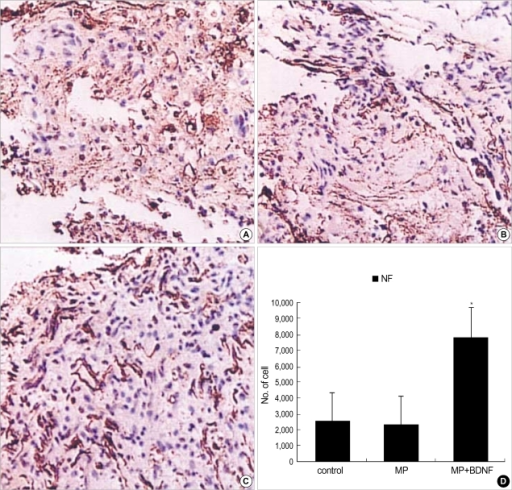 Immunohistochemical staining for NF at the contusion injury site (×40). Ten weeks after SCI, fewer NF-positive neuronal fibers are observed at the lesion in the control (A) and MP-only groups (B). More NF-positive neuronal axons survive in the spinal cords of rats in the MP+BDNF group (C). This difference, represented as means±S.D. in (D), is significant (p<0.05).