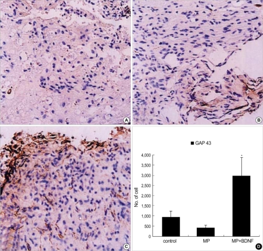Immunohistochemical staining for GAP-43 at the contusion injury site (×40). Ten weeks after SCI, many GAP-43-positive neurites are found in the MP+BDNF group (C), while few are detected in the control (A) and MP-only treated (B) rats. This difference, represented as means±S.D. in (D), is significant (p<0.05).