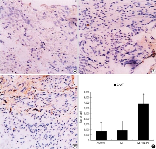 Immunohistochemical staining for ChAT at the contusion injury site (×40). More ChAT-positive axons appear in MP+BDNF rats (C) ten weeks after SCI than in the other two groups (A, B). This difference, represented as means±S.D. in (D), is significant (p<0.05).