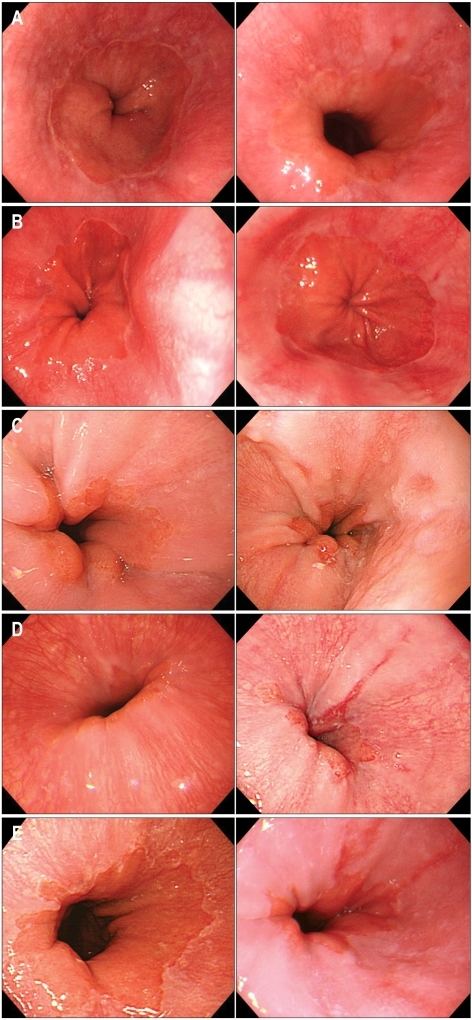 Paired Endoscopic Pictures Of Lower Esophagus In 5 Case