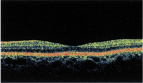 The OCT shows the normal finding of the cross-sectional retinal image (right eye).