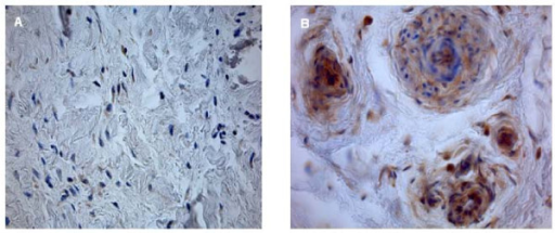 Rotator cuff slices after straining with VEGF antibody (40× magnification). In the control group, VEGF expression is minimally observed (a); VEGF expression is high in group IV (b).
