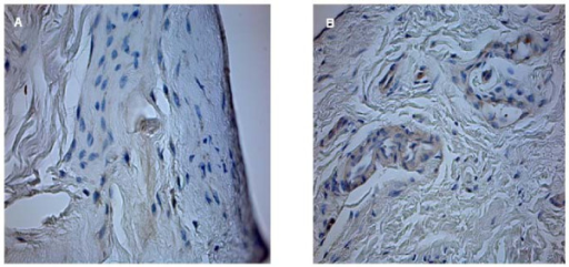 Rotator cuff slices after straining with HIF antibody (40× magnification). Minimal HIF expression is detected in group I (control group) (a). Many HIF positive cells in group IV (Patte III) (b).