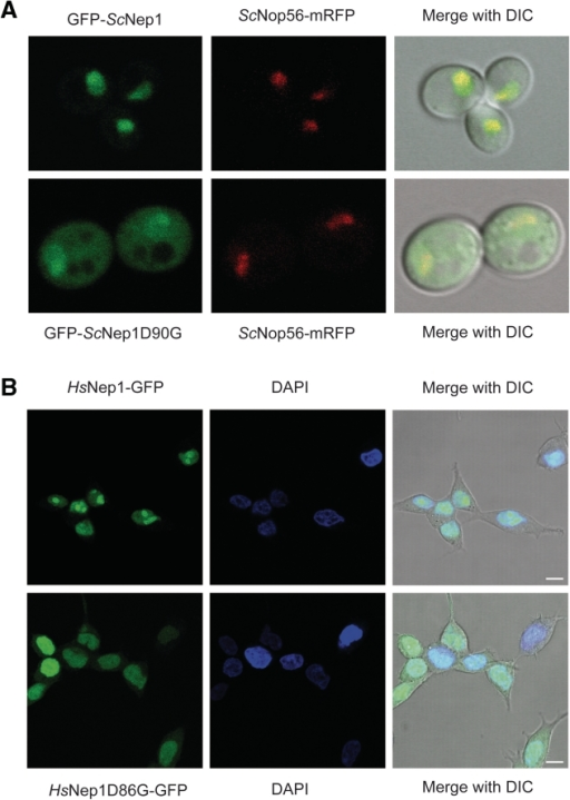 Intracellular localization of BCS-mutated Nep1 proteins. (A) Cellular localization of yeast wild-type ScNep1 (upper part) and the D90G mutant (lower part) using confocal microscopy. Both proteins were expressed as GFP-fusion together with the ScNop56-mRFP protein as a nucleolar marker. (Left) Green fluorescence (ScNep1); (middle) red fluorescence (ScNop56); (right) merge with differential interference contrast (DIC). (B) Intracellular localization of human HsNep1 (upper part) and the HsNep1D86G mutant (lower part) after 24 h induction with 200 ng/ml doxycycline. The cellular localizations of the GFP-fusion proteins were analysed by confocal microscopy. (Left) Green fluorescence; (middle) DAPI staining; (right) merge with differential interference contrast (DIC). Scale bar: 10 µm.