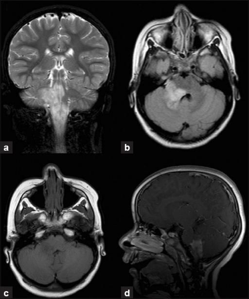 a) T2-weighted coronal and (b) FLAIR axial MRI images | Open-i