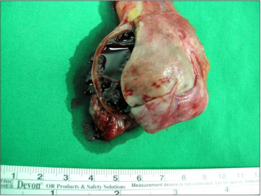 Gross photograph of the testis after right radical orch | Open i