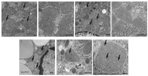 Abnormal mitochondrial ultrastructure in mice fed a choline restricted, very high fat, low protein, very low carbohydrate diet.(A) Transmission electron micrograph of hepatocytes from mice maintained for 6 weeks on standard chow reveals normal mitochondrial structure. Arrows, mitochondria. (B) Higher power image of mitochondria from mice maintained on standard chow, demonstrating normal cristae. (C) Hepatocyte mitochondria from livers of mice maintained on VLP/C+ exhibited normal cristae folding and evident double membranes. Sparse microvesicular lipid droplets were also evident (white circular structure). Arrows, mitochondria; arrowhead; autophagosome. (D) Higher power image of hepatocyte mitochondria from mice maintained on VLP/C+, showing morphology of the cristae. (E) VLP/C- diet induces massive hepatocyte steatosis (note large circular pale fat droplets), and swollen mitochondria with disorganized and dilated cristae. Hepatocyte nucleus is on the right side of the image. Arrows, mitochondria. (F) Higher power image of hepatocyte mitochondria from mice maintained on VLP/C-, with dilated cristae (arrow) and an autophagosome (arrowhead). (G) High power image of hepatocyte mitochondria from mice maintained on VLP/C-, with dilated cristae (arrows). Scale bars, 500 nm (A–F), 100 nm (G).