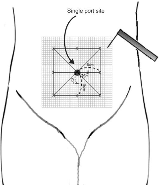Schematic representation depicting mapping of the peri-incisional area for assessment of punctuate mechanical hyperalgesia.
