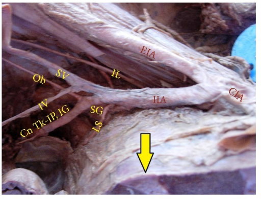 Right half of pelvis showing the bifurcation of IIA above the level of lumbosacral articulation. Arrow: lumbosacral joint; IIA: internal iliac artery; EIA: external iliac artery; CIA: common iliac artery; SG: superior gluteal artery; SV: superior vesical artery; IV: inferior vesical artery; Ob: obturator artery; LS: lateral sacral artery; IL: iliolumbar artery; Cn Tk-IP, IG: Common trunk of internal pudendal and inferior gluteal artery.
